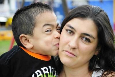 Cerca de 60 personas padecen enfermedades lisosomales