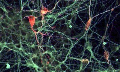 Científicos crean neuronas y buscan utilizarlas para reparar daños en médula