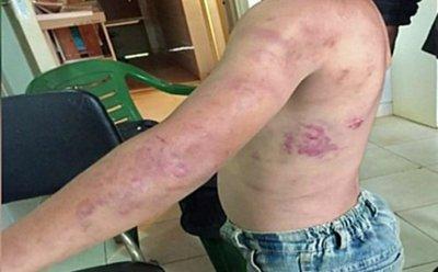 Médica colaboró para detener a padrastro golpeador