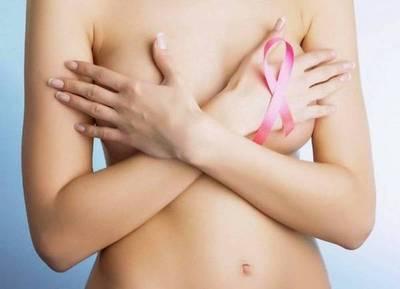 Cinco mitos sobre el cáncer de mama