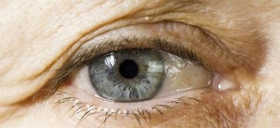 Inventan un pegamento que permite curar temporalmente heridas en los ojos
