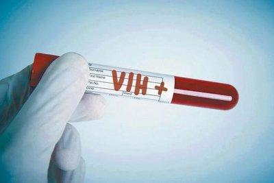 Vacunación terapéutica no suprime VIH sin contar con antirretrovirales