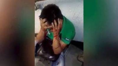 Domingo de balneario termina mal: mujer tajea con vidrio a su marido