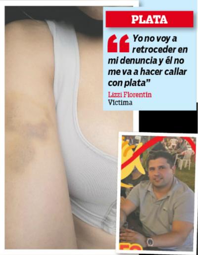 Recibió una golpiza de su amigo borracho y ahora la amenazan