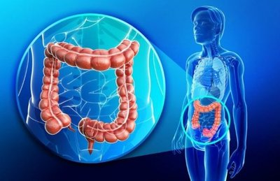 Dan primer paso para detección temprana de cáncer colon