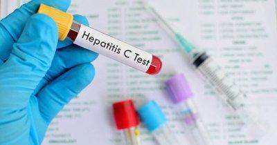 Simplifican diagnóstico de la hepatitis C