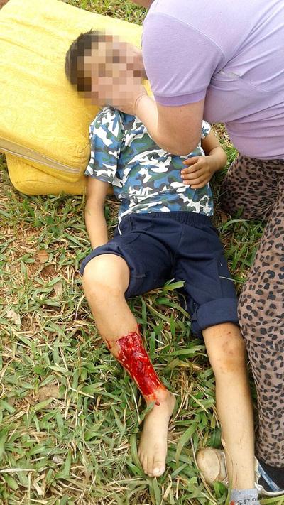 Rottweiler de una concejal municipal destroza la pierna de niño de 10 años
