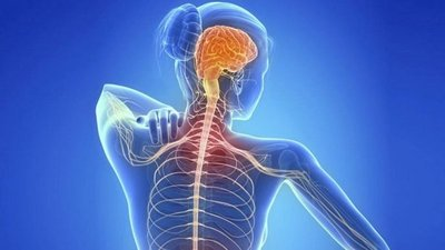 Esclerosis múltiple afecta más a mujeres