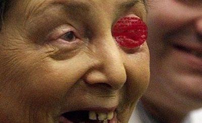 Implantaron un diente en su ojo