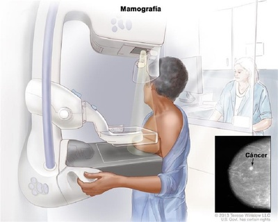 Cuándo hacerse una mamografía