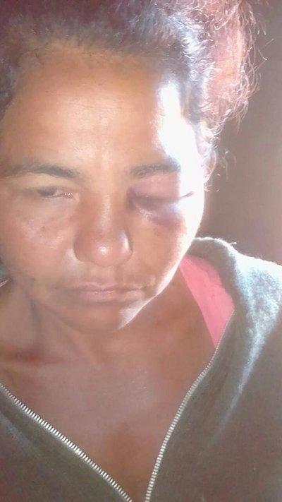 Mujer fue brutalmente golpeada en Calle 4