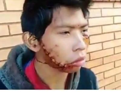 """HOY / Desfiguran su rostro, le ofrecen cirugía plástica gratis, pero doctor  tiene un """"insólito"""" impedimento"""
