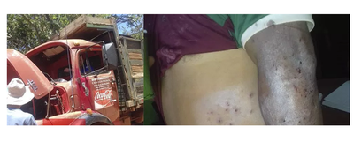 Asaltante muere mientras atracaba a un camión repartidor – Prensa 5