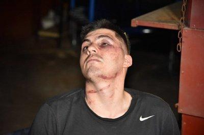 Joven denuncia brutal golpiza por parte de policías