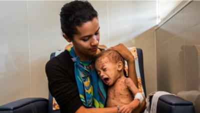 Hospital de CDE recibe dos criaturas con desnutrición severa