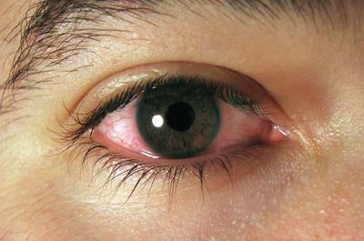 En verano el agua de piscina y los rayos del sol pueden afectar a los ojos