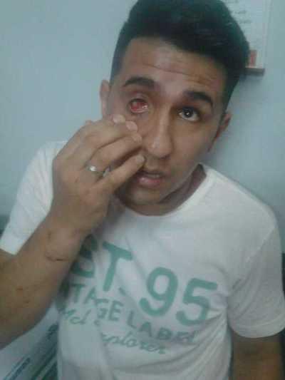 Denuncian por brutal tortura a agentes policiales de la comisaría 7ª de CDE