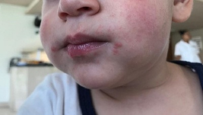 Enfermedad de manos, pies y boca, contagiosa y frecuente en niños