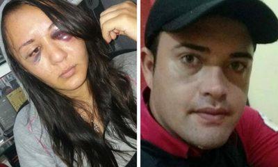 Hombre propina brutal golpiza a su pareja en Presidente Franco