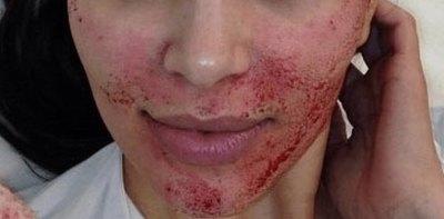 """Contrajeron VIH por ¡""""facial del vampiro""""!"""