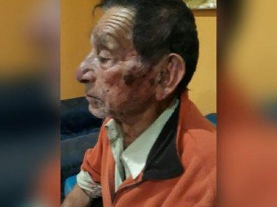 Golpean brutalmente a anciano de 89 años para robarle G. 2 millones