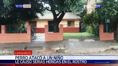 Caaguazú: Perro ataca a niño y lo hiere gravemente en el rostro