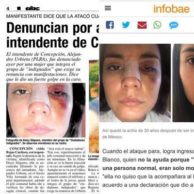 PAPELÓN: ABC Color utiliza imagen falsa de mujer golpeada en el caso del intendente Urbieta