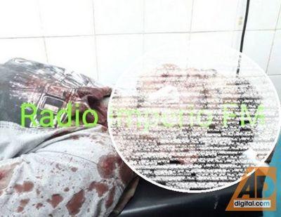 Joven fue baleado en el rostro al salir de su casa