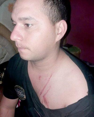 Atacó al ex con piedras y arañazos al ver su foto con otra en Facebook