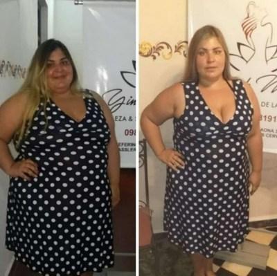 ¿La obesidad como arma para llamar la atención? El polémico caso de Pamelita Ovelar