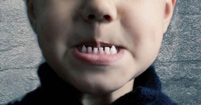 Extraen más  de 500 dientes  a un niño
