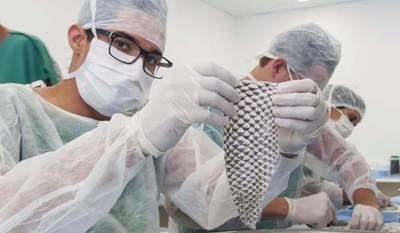 Realizan el primer implante de vagina con piel de pescado en Colombia
