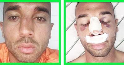 Ramón ya  fue operado