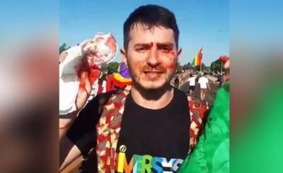 Agresión a manifestantes LGBT es justificado según intendente