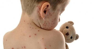 Cháke por posible epidemia de sarampión en el país he'i