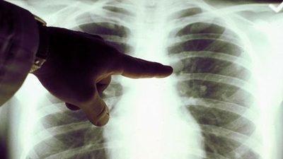 Luz roja para tratar el cáncer de pulmón