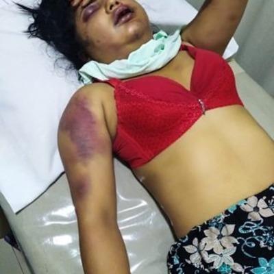 Raptan y golpean brutalmente a una joven