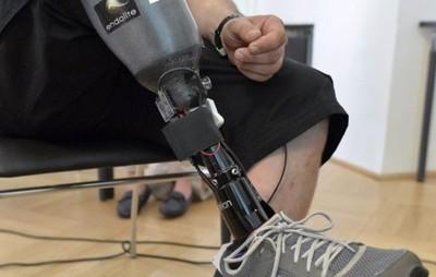 PTI apuesta al desarrollo de prótesis a menor costo