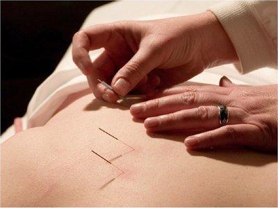 Salud busca reglamentar la acupuntura como especialidad médica