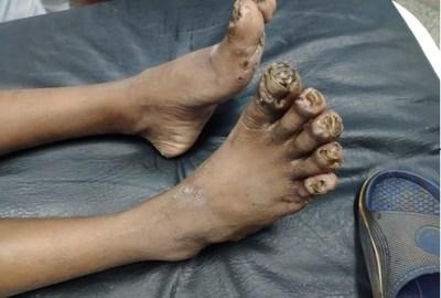 Rescatan a niño indígena con los pies y manos carcomidos por piques. Tiene una severa desnutrición