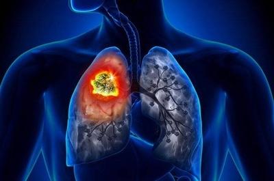 HOY / El cáncer de pulmón: sin síntomas en primera fase dificulta la detección temprana