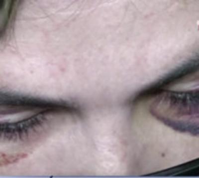 Mujer denuncia brutal agresión por parte de su pareja