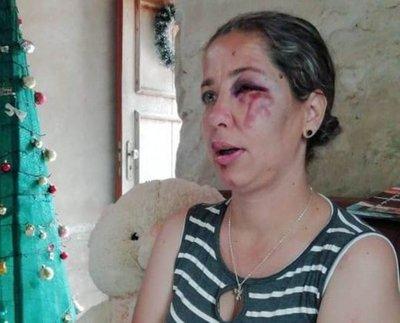 Concepción: Mujer fue derribada de su moto por desconocidos