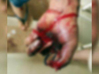 Un cebollón explotó por la mano de un nene de 2 añitos