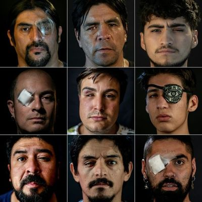 """""""Me cambió la vida"""": relatos de heridos oculares en la revuelta en Chile"""