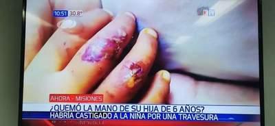 Horror en San Ignacio, quemó la mano de su propia hija