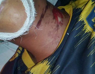 Menor muere electrocutado en Itakyry