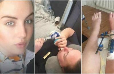 Azafata sufre siete fracturas en una pierna tras fuertes turbulencias en un avión