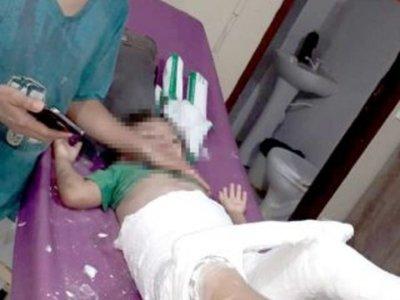 Rompió la cadera de su sobrino estando borracha