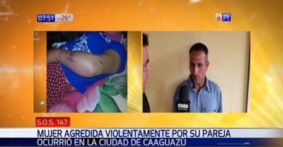 Mujer denuncia golpiza tras ataque de celos de su pareja
